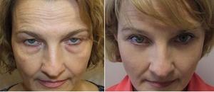 Причины влияющие на появление мешков под глазами
