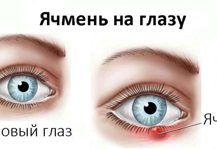 Причины и симптомы появления ячменя на глазу: медикаментозные и ...