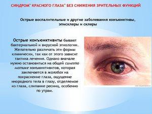 Патологические болезни глаза