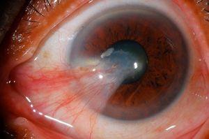 Особенности лечения глаз