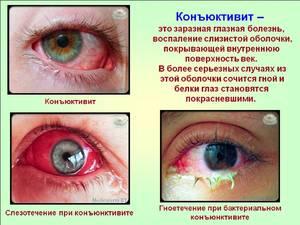 Причины заболевания глаз