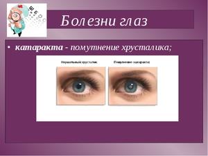 Разные заболевания глаз