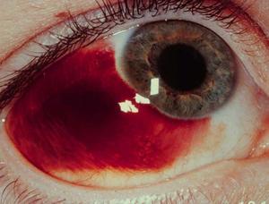 Как проявляется кровоизлияние
