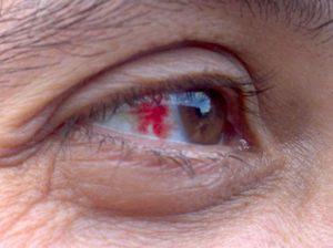 Причины кровоизлияния глаз
