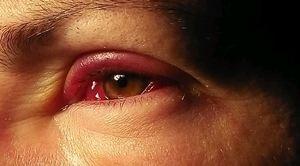 Лечение глаза