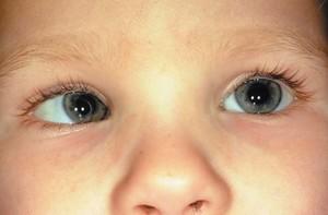 Синдром ленивого глаза