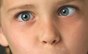 Факторы влияющие на заболевание амблиопия