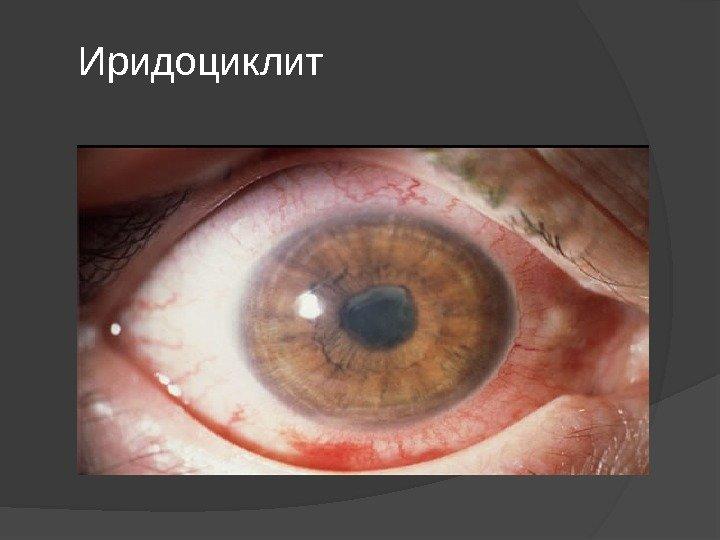 Иридоциклит: причины возникновения и симптомы, лечение в домашних ...