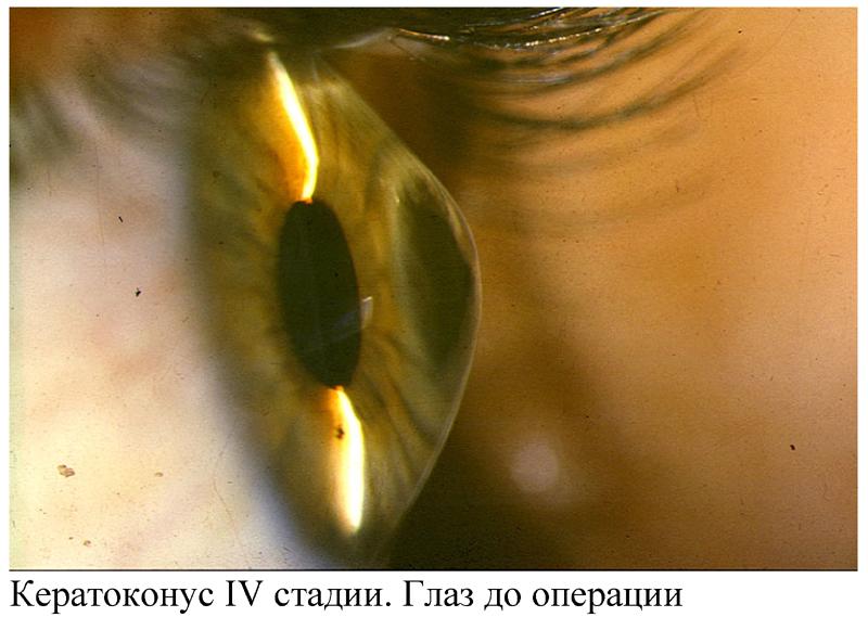 Кератоконус: основные причины, симптомы и лечение патологии ...