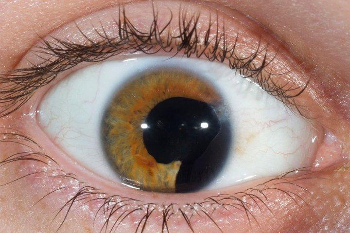 Врождённая колобома радужки глаза и его сосудистой оболочки, а ...