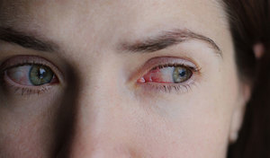 Сухость глаз