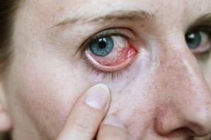 Перечень симптомов эписклерита глаз