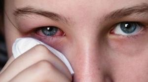 Причины заболевания эписклерит глаз