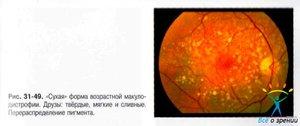 Особенности заболевания макулодистрофия