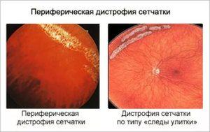 Как лечить макулодистрофию