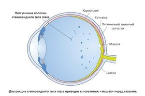 Возникновения мушек в глазах