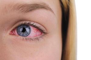 Как лечить зрение