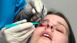 Оперативное лечение