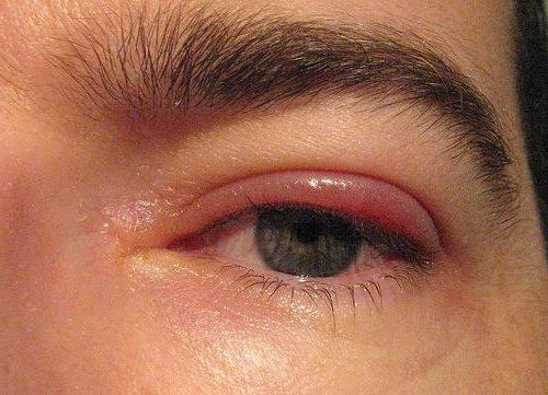 Опух глаз что делать в домашних условиях